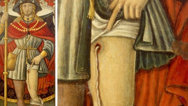 In 2017, Italian researchers inspected a painting of Saint Roch. The 14th-century Frenchman was said to have cured people of the plague and then contracted it himself. He is often portrayed with a bubo, a swelling on the upper leg of plague victims.The medieval painting was different. Saint Roch's leg shows a wound dripping with a long white goo. In the past, the strange filament was thought to be pus, but the recent study authors are convinced that it was a worm.The unknown painter did not use his imagination, either. This is possibly the earliest representation of a graphic parasite called Dracunculus medinensis. Also known as the Guinea worm, its larvae are ingested via infected water.After a year's incubation, things get horrifying. The person's leg blisters, and a worm up to 1-meter-long (3 ft) erupts through the skin. Though not fatal, it is an excruciating experience.